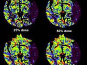 Image Wisely Radiation Safety Case: CT Brain Perfusion Dose Optimization